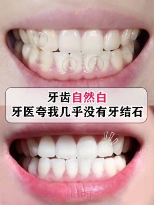牙齿自然白,牙医夸我几乎没有牙结石