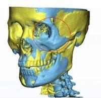 全省首例!合肥一市民车祸毁容严重,3D打印修复治疗获成功